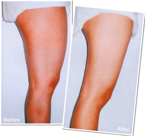 before aft1 1 $68 Acupoint Slimming Treatment worth $148